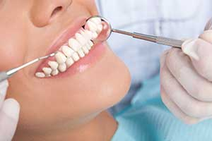 Professional Teeth Cleaning | Chappaqua Dentistry