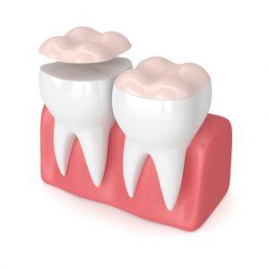 3D Rendering Of Teeth With Dental Onlay